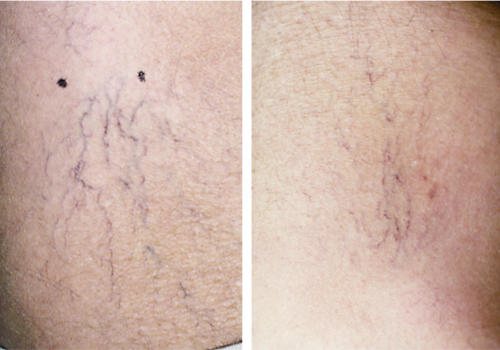 laser skin resurfacing2
