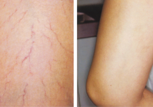 laser skin resurfacing3