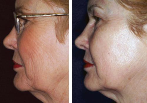 laser skin resurfacing4