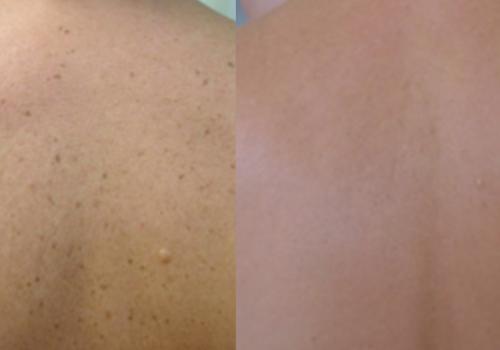 laser skin resurfacing5